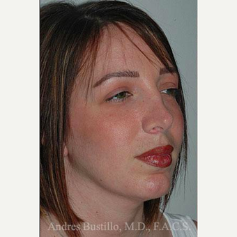 36 year old woman treated with Revision Rhinoplasty before 3460749