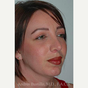 36 year old woman treated with Revision Rhinoplasty after 3460749