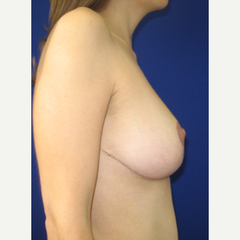 25-34 year old woman treated with Breast Reduction after 3322068