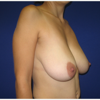 25-34 year old woman treated with Breast Reduction before 3322068