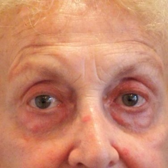 65-74 year old man treated with Eyelid Surgery before 3497030