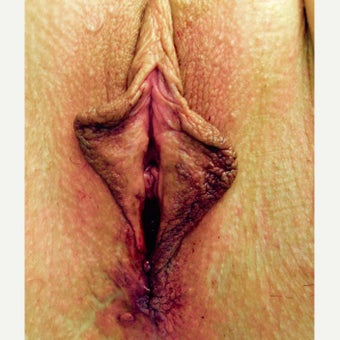 45-54 year old woman treated with Vaginoplasty after 2442821