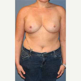 25-34 year old woman treated with Breast Reduction after 3454175