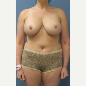 25-34 year old woman treated with Breast Reduction before 3454175