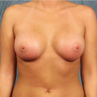 Mentor Breast Implants after 3033464