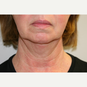 65-74 year old woman treated with Vaser Liposuction before 2998733