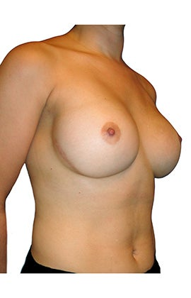 Breast reconstruction following bilateral mastectomy 416794