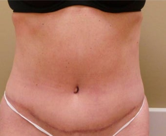 55-64 year old woman treated with Tummy Tuck after 1755932
