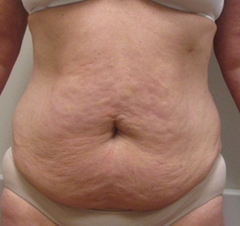 55-64 year old woman treated with Tummy Tuck before 1755932