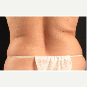 45-54 year old woman treated with CoolSculpting before 3088148