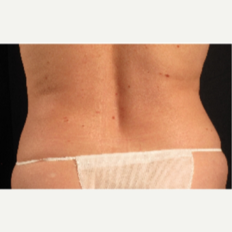 45-54 year old woman treated with CoolSculpting after 3088148