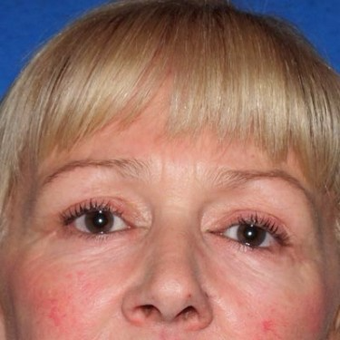 45-54 year old woman treated with Eyelid Surgery after 3497021
