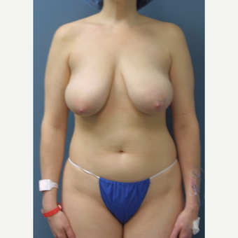 35-44 year old woman treated with Breast Reduction before 3475553