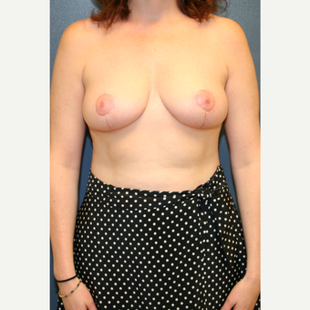 35-44 year old woman treated with Breast Reduction after 3475553