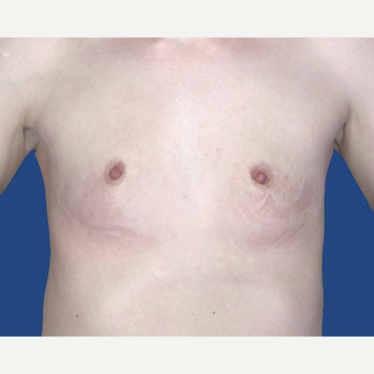 25-34 year old woman treated with Breast Augmentation before 3027475