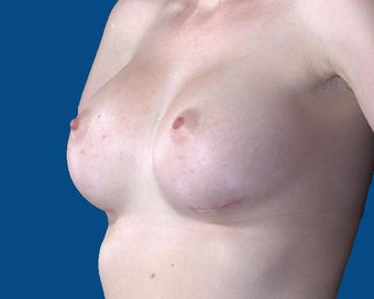 25-34 year old woman treated with Breast Augmentation 3027475