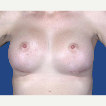 25-34 year old woman treated with Breast Augmentation after 3027475