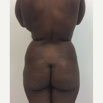 35-44 year old woman treated with Fat Transfer before 3590468