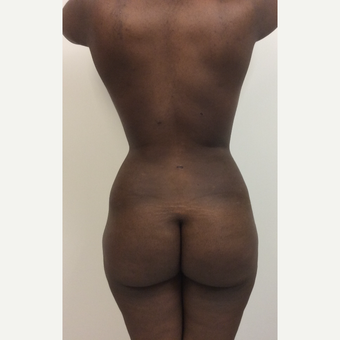 35-44 year old woman treated with Fat Transfer after 3590468