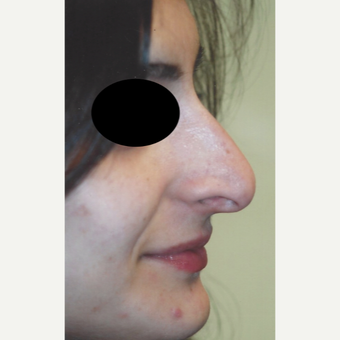 25-34 year old woman treated with Rhinoplasty before 3701577