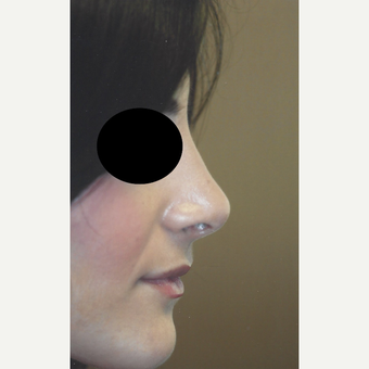 25-34 year old woman treated with Rhinoplasty after 3701577
