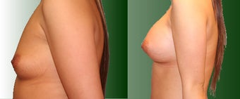 Breast Augmentation before 96466