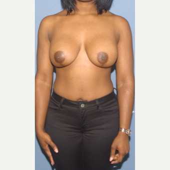25-34 year old woman treated with Breast Lift with Implants after 3452984
