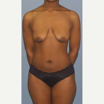 25-34 year old woman treated with Breast Lift with Implants before 3452984
