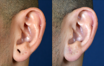 Stretched Earlobe Repair before 524962