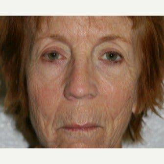 65-74 year old woman treated with Lip Lift before 2109753