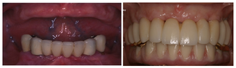 Multiple Teeth Implants  before 1008331