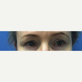 45-54 year old woman treated with Eyelid Surgery before 3415366