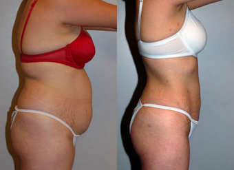 Liposuction before 1182831