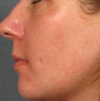 25-34 year old woman treated with Age Spots Treatment after 3282825