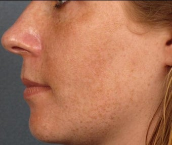 25-34 year old woman treated with Age Spots Treatment before 3282825