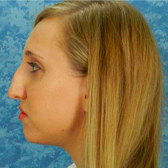 Rhinoplasty before 3124733