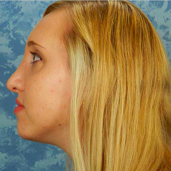 Rhinoplasty after 3124733