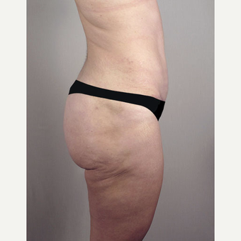 35-44 year old woman treated with Brazilian Butt Lift after 3213479