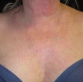 45-54 year old woman treated with Fractional Laser after 1639788