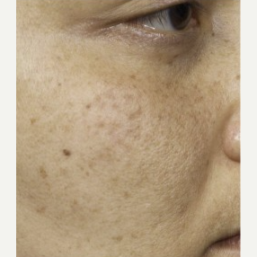 35-44 year old woman treated with Clear + Brilliant Resurfacing after 3098754