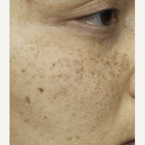 35-44 year old woman treated with Clear + Brilliant Resurfacing before 3098754