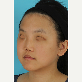 25-34 year old woman treated with Rhinoplasty before 3629024