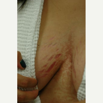Laser stretch mark removal for breasts