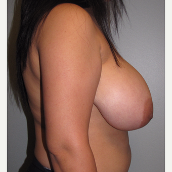 25-34 year old woman treated with Breast Reduction before 3663424