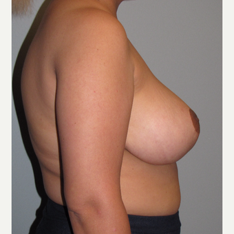 25-34 year old woman treated with Breast Reduction after 3663424