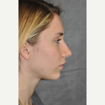 25-34 year old woman treated with Rhinoplasty after 3566051