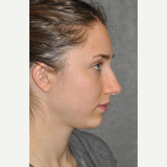 25-34 year old woman treated with Rhinoplasty before 3566051