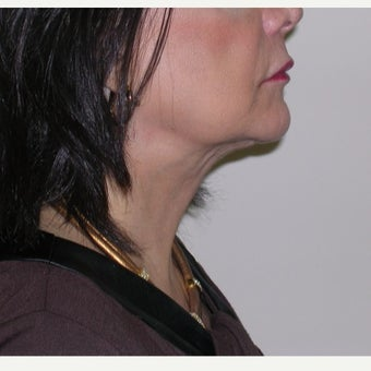 65-74 year old woman treated with Kybella after 2665808