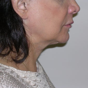65-74 year old woman treated with Kybella before 2665808