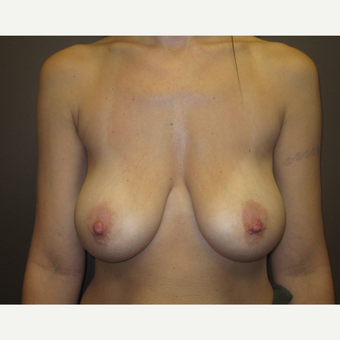 25-34 year old woman treated with Breast Lift with Implants before 3604618